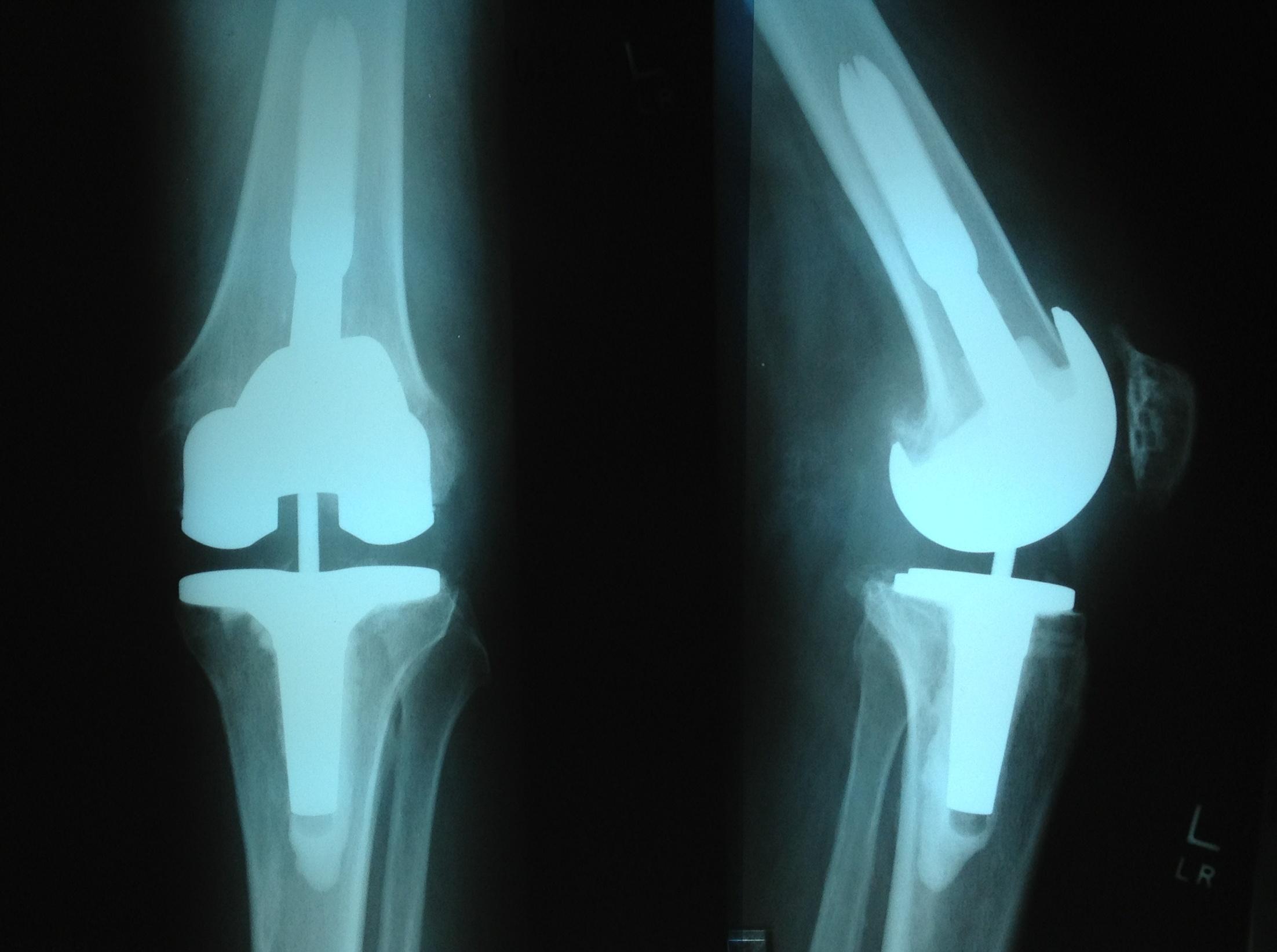 Image result for घुटने बदलवाने